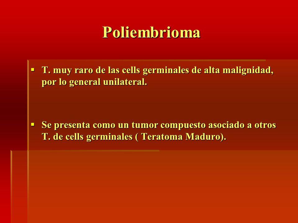 Poliembrioma T. muy raro de las cells germinales de alta malignidad, por lo general unilateral. T. muy raro de las cells germinales de alta malignidad