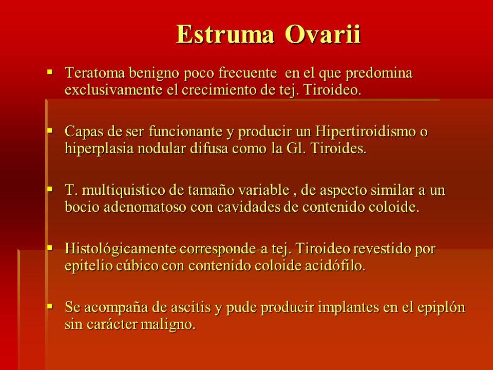 Estruma Ovarii Estruma Ovarii Teratoma benigno poco frecuente en el que predomina exclusivamente el crecimiento de tej. Tiroideo. Teratoma benigno poc