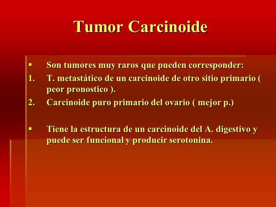 Tumor Carcinoide Son tumores muy raros que pueden corresponder: Son tumores muy raros que pueden corresponder: 1.T. metastático de un carcinoide de ot