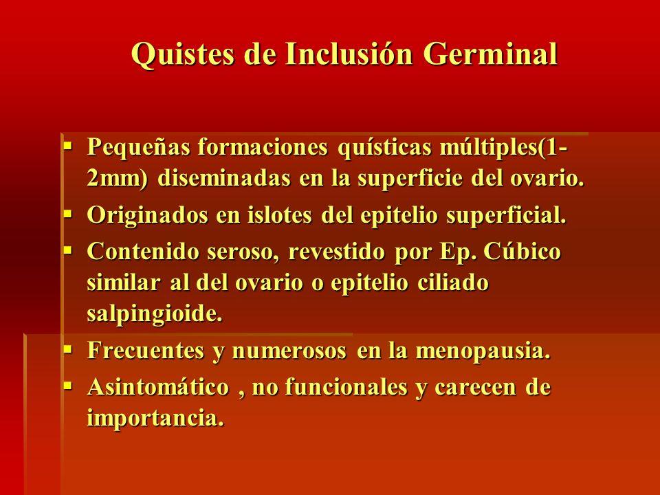 Quistes de Inclusión Germinal Pequeñas formaciones quísticas múltiples(1- 2mm) diseminadas en la superficie del ovario. Pequeñas formaciones quísticas