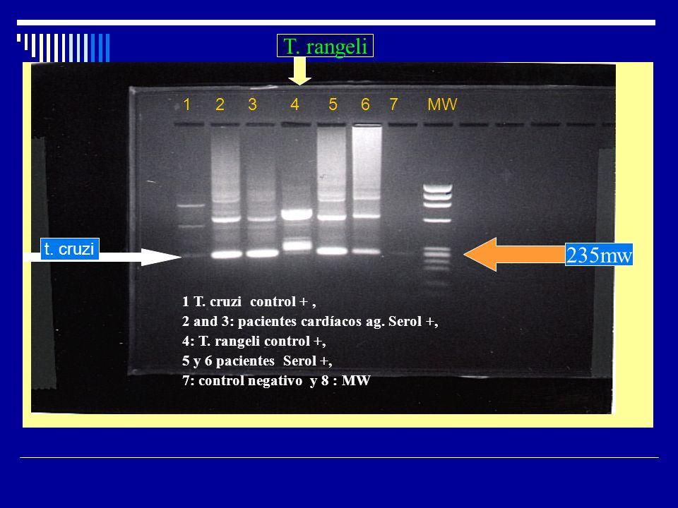 1 T. cruzi control +, 2 and 3: pacientes cardíacos ag. Serol +, 4: T. rangeli control +, 5 y 6 pacientes Serol +, 7: control negativo y 8 : MW 235mw T