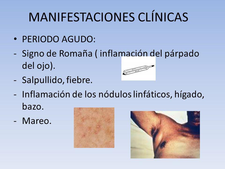 MANIFESTACIONES CLÍNICAS PERIODO AGUDO: -Signo de Romaña ( inflamación del párpado del ojo). -Salpullido, fiebre. -Inflamación de los nódulos linfátic