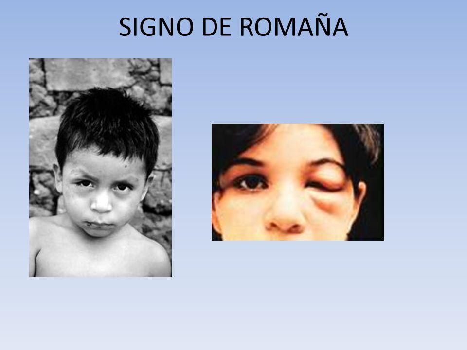 SIGNO DE ROMAÑA
