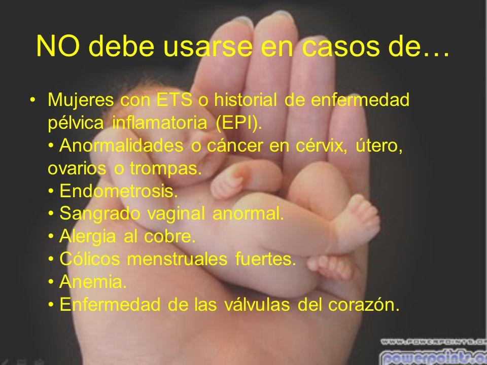NO debe usarse en casos de… Mujeres con ETS o historial de enfermedad pélvica inflamatoria (EPI). Anormalidades o cáncer en cérvix, útero, ovarios o t