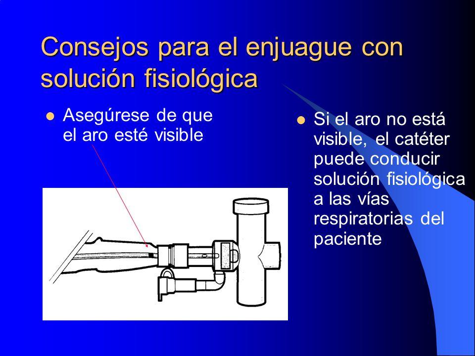 Consejos para el enjuague con solución fisiológica Asegúrese de que el aro esté visible Si el aro no está visible, el catéter puede conducir solución