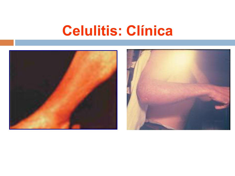 Celulitis: Clínica
