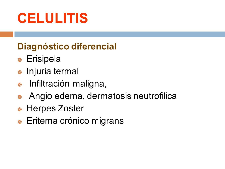 Diagnóstico diferencial Erisipela Injuria termal Infiltración maligna, Angio edema, dermatosis neutrofilica Herpes Zoster Eritema crónico migrans