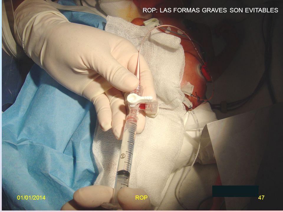ROP: LAS FORMAS GRAVES SON EVITABLES 01/01/201447ROP