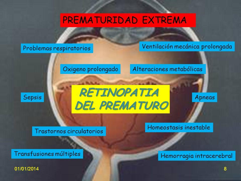 RETINOPATIA DEL PREMATURO PREMATURIDAD EXTREMA Problemas respiratorios Trastornos circulatorios Homeostasis inestable Oxigeno prolongado Sepsis Transf