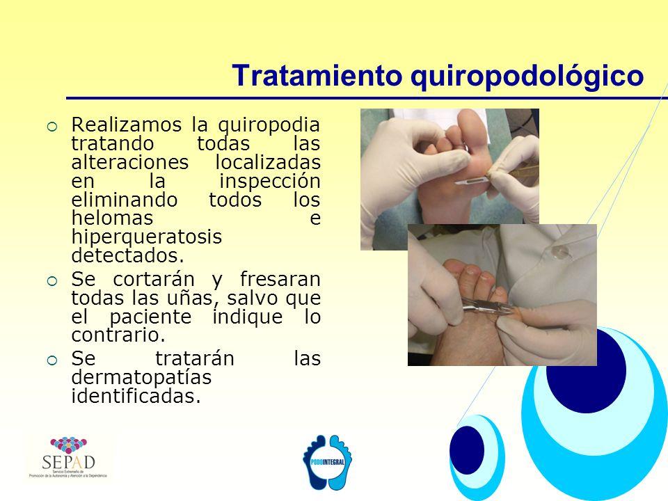 Tratamiento quiropodológico Realizamos la quiropodia tratando todas las alteraciones localizadas en la inspección eliminando todos los helomas e hiper