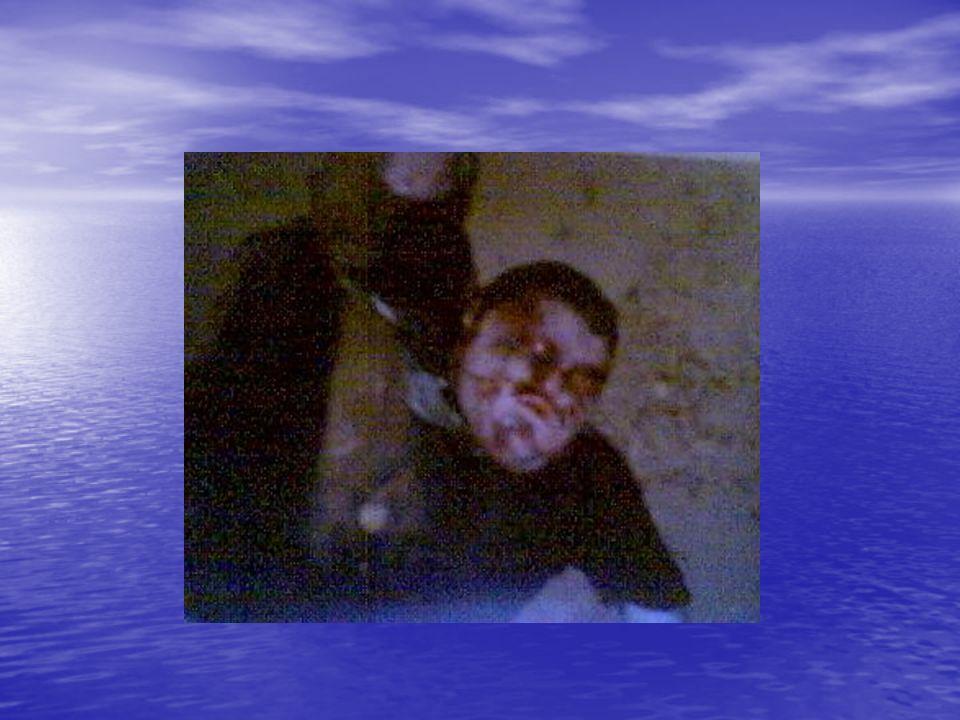 Aspecto de un Ahogado El signo más característico del que ha muerto ahogado, es la expulsión de espuma blanca por las fosas nasales y por la boca; esp
