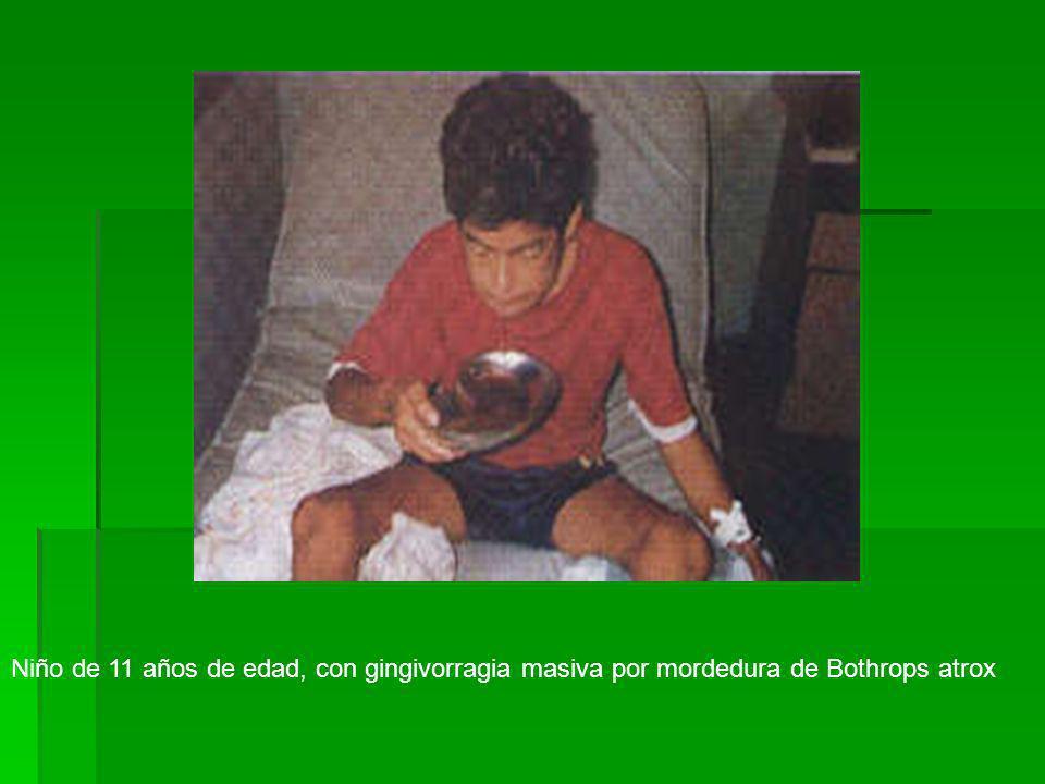 Niño de 11 años de edad, con gingivorragia masiva por mordedura de Bothrops atrox