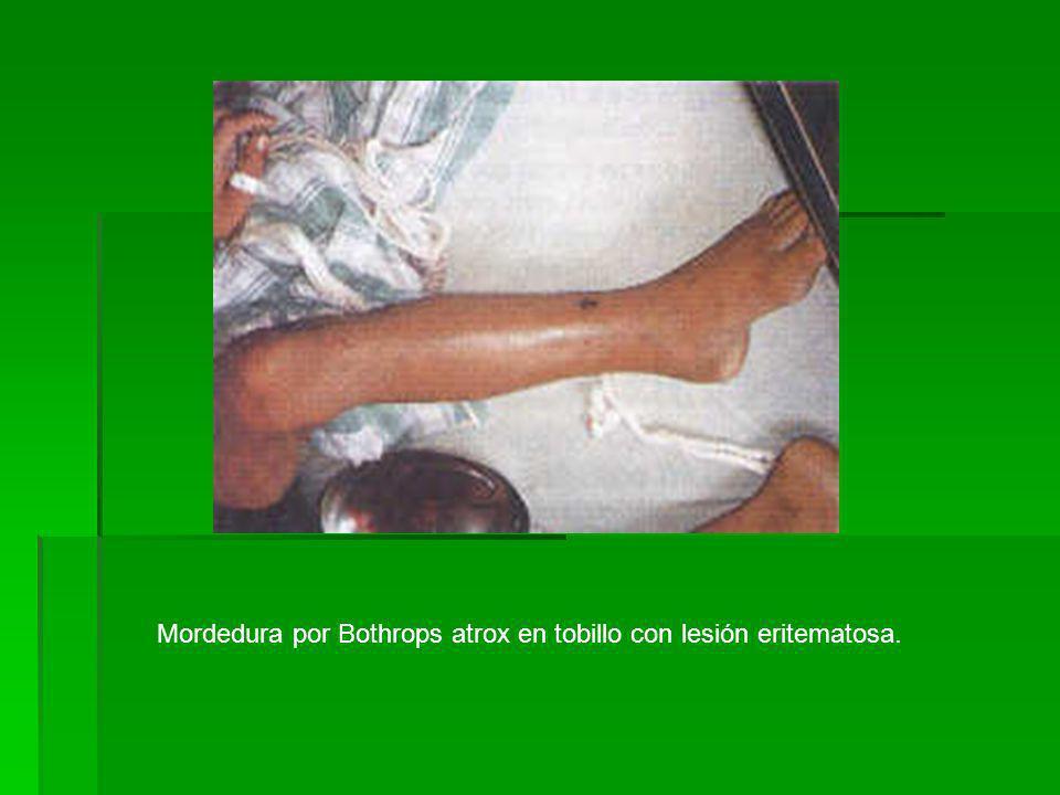 Mordedura por Bothrops atrox en tobillo con lesión eritematosa.