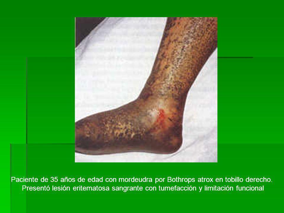 Paciente de 35 años de edad con mordeudra por Bothrops atrox en tobillo derecho. Presentó lesión eritematosa sangrante con tumefacción y limitación fu