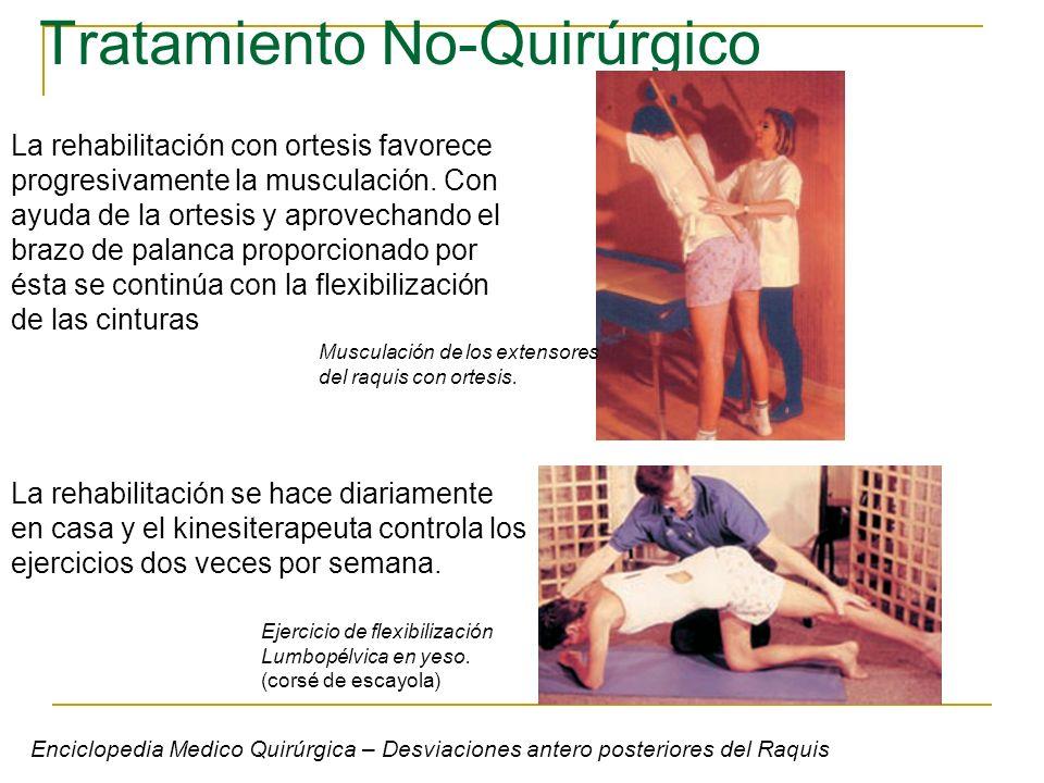 Tratamiento No-Quirúrgico La rehabilitación con ortesis favorece progresivamente la musculación. Con ayuda de la ortesis y aprovechando el brazo de pa