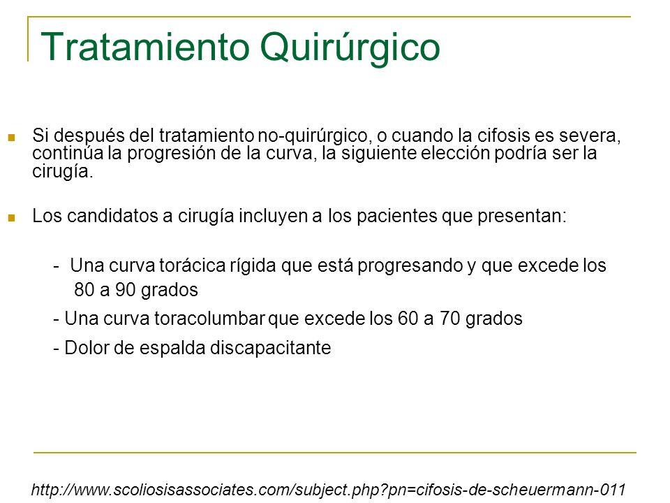Tratamiento Quirúrgico Si después del tratamiento no-quirúrgico, o cuando la cifosis es severa, continúa la progresión de la curva, la siguiente elecc