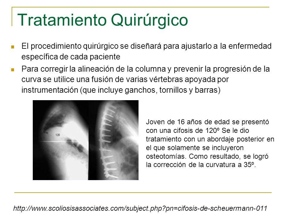 Tratamiento Quirúrgico El procedimiento quirúrgico se diseñará para ajustarlo a la enfermedad específica de cada paciente Para corregir la alineación