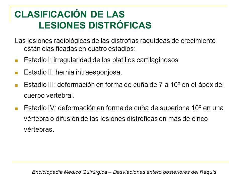 CLASIFICACIÓN DE LAS LESIONES DISTRÓFICAS Las lesiones radiológicas de las distrofias raquídeas de crecimiento están clasificadas en cuatro estadios: