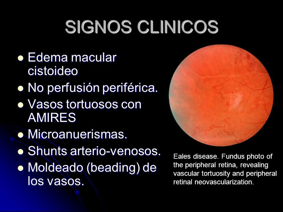 SIGNOS CLINICOS Edema macular cistoideo Edema macular cistoideo No perfusión periférica. No perfusión periférica. Vasos tortuosos con AMIRES Vasos tor