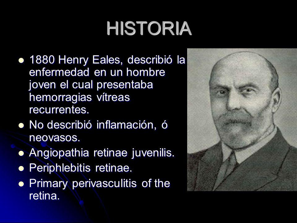 HISTORIA 1880 Henry Eales, describió la enfermedad en un hombre joven el cual presentaba hemorragias vítreas recurrentes. 1880 Henry Eales, describió