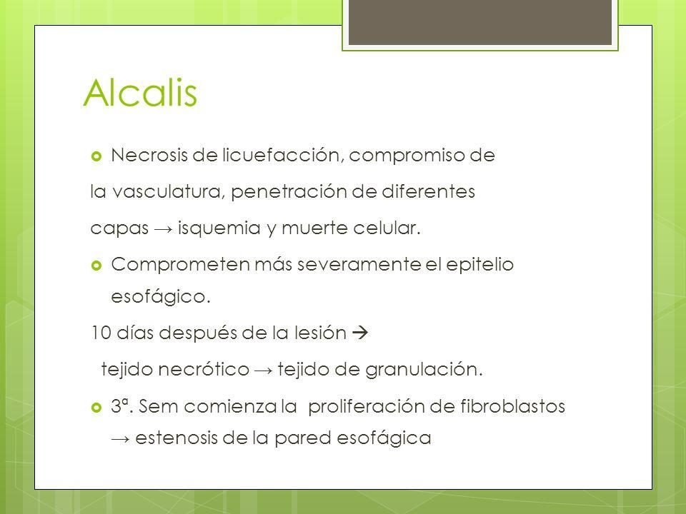 Alcalis Necrosis de licuefacción, compromiso de la vasculatura, penetración de diferentes capas isquemia y muerte celular. Comprometen más severamente