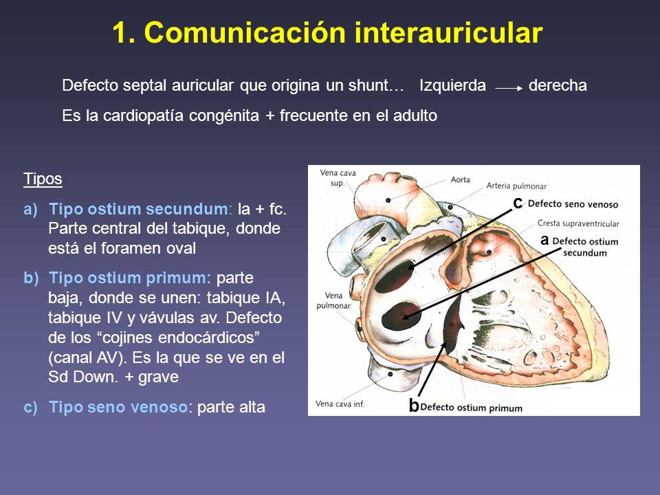 1. Comunicación interauricular Defecto septal auricular que origina un shunt… Es la cardiopatía congénita + frecuente en el adulto Izquierda derecha T
