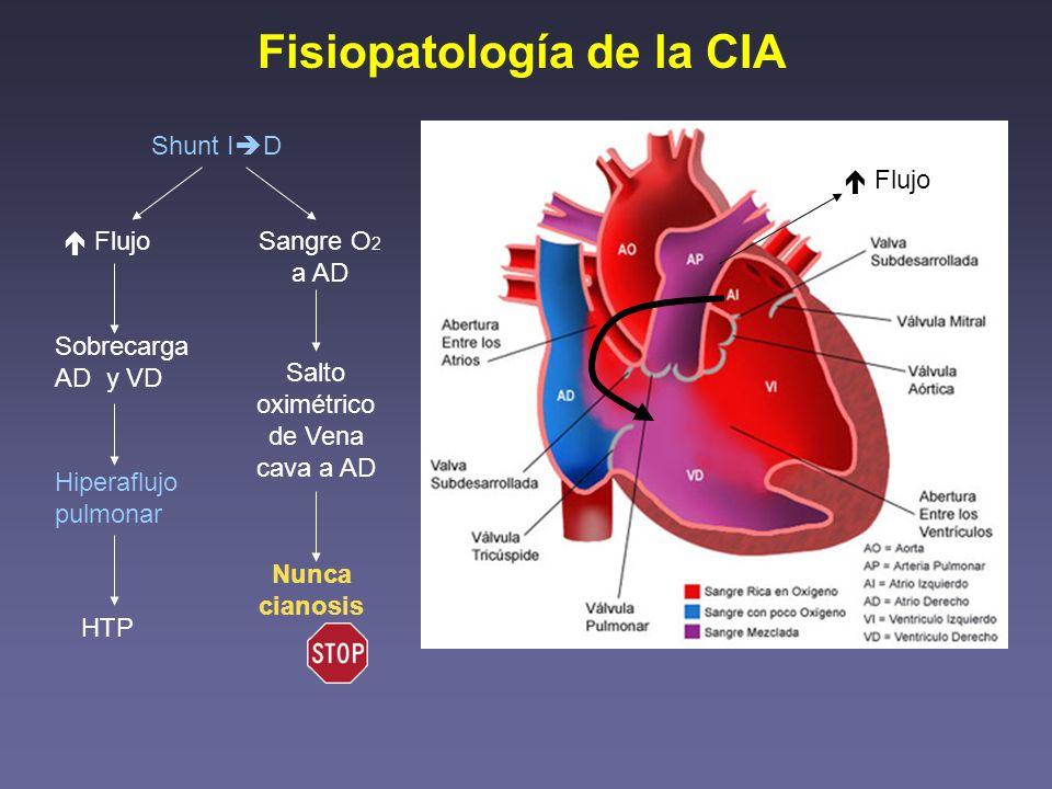 Fisiopatología de la CIA Shunt I D Hiperaflujo pulmonar FlujoSangre O 2 a AD Sobrecarga AD y VD Salto oximétrico de Vena cava a AD HTP Nunca cianosis