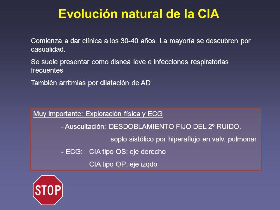Evolución natural de la CIA Comienza a dar clínica a los 30-40 años. La mayoría se descubren por casualidad. Se suele presentar como disnea leve e inf