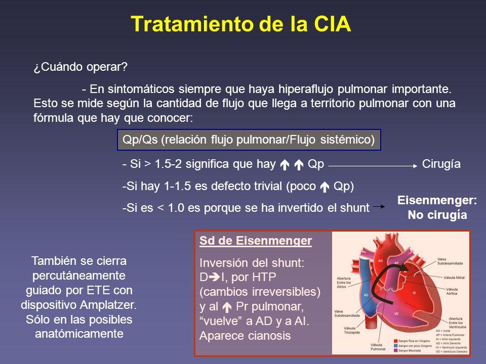 Tratamiento de la CIA ¿Cuándo operar? - En sintomáticos siempre que haya hiperaflujo pulmonar importante. Esto se mide según la cantidad de flujo que