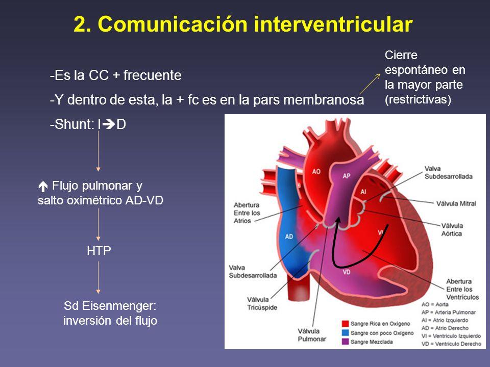 2. Comunicación interventricular -Es la CC + frecuente -Y dentro de esta, la + fc es en la pars membranosa -Shunt: I D Flujo pulmonar y salto oximétri