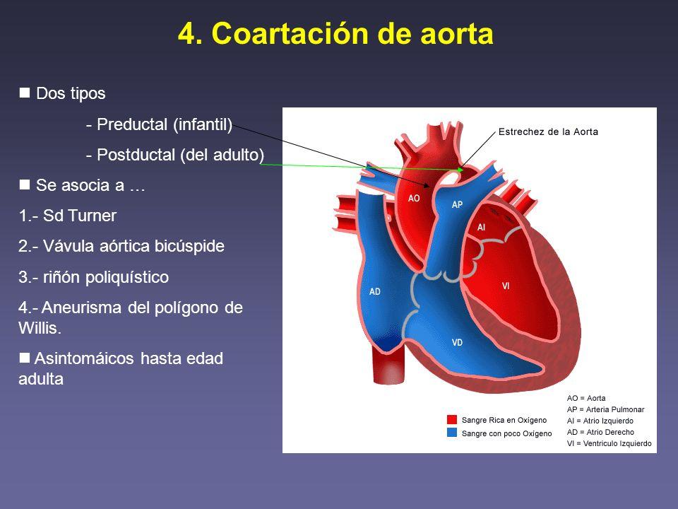 4. Coartación de aorta Dos tipos - Preductal (infantil) - Postductal (del adulto) Se asocia a … 1.- Sd Turner 2.- Vávula aórtica bicúspide 3.- riñón p