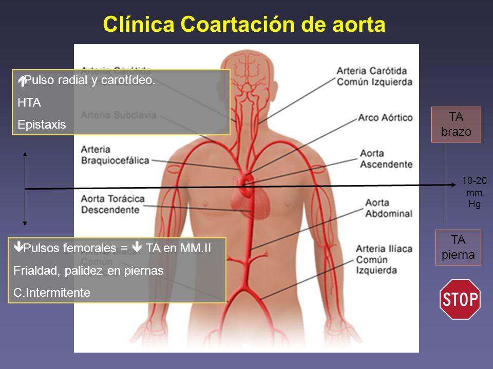 Clínica Coartación de aorta Pulsos femorales = TA en MM.II Frialdad, palidez en piernas C.Intermitente Pulso radial y carotídeo. HTA Epistaxis TA braz