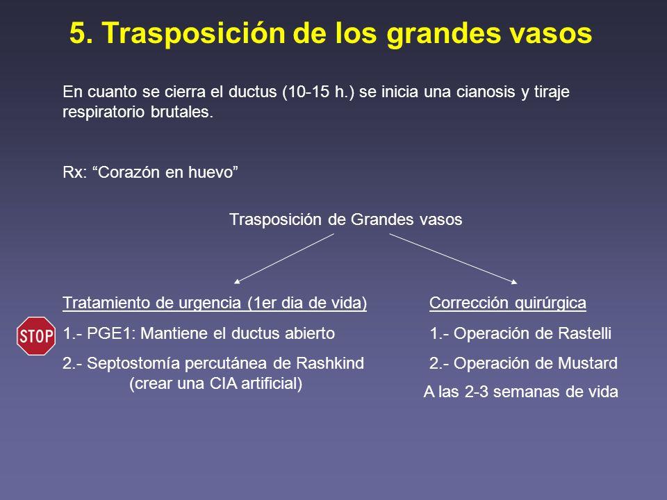 5. Trasposición de los grandes vasos En cuanto se cierra el ductus (10-15 h.) se inicia una cianosis y tiraje respiratorio brutales. Rx: Corazón en hu