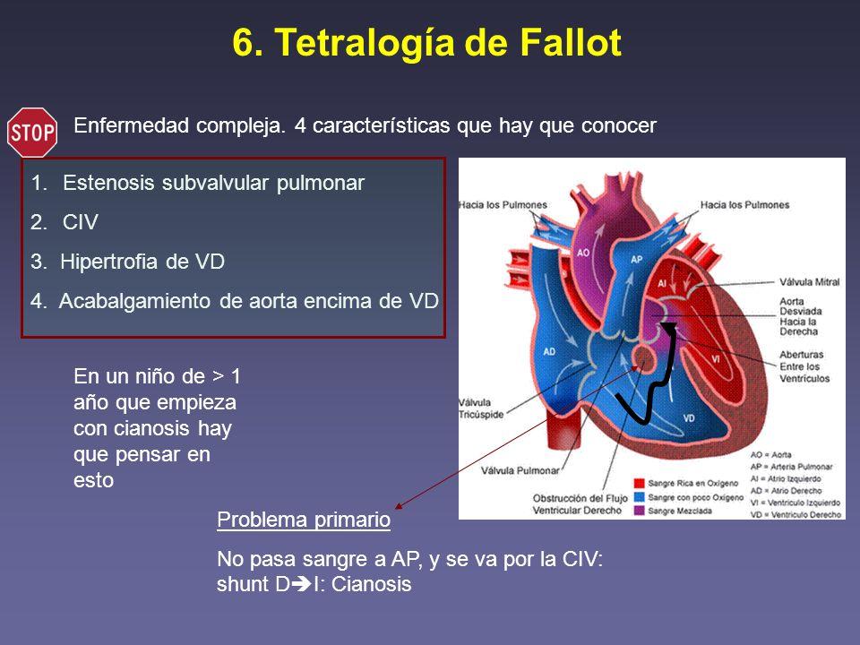 6. Tetralogía de Fallot Enfermedad compleja. 4 características que hay que conocer 1.Estenosis subvalvular pulmonar 2.CIV 3. Hipertrofia de VD 4. Acab