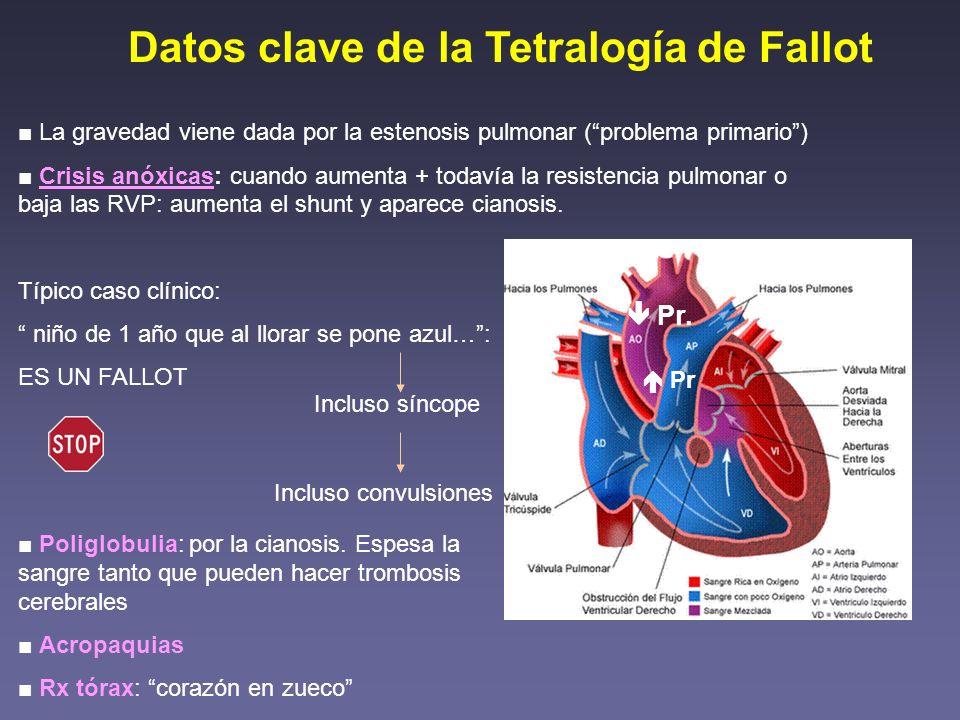 Datos clave de la Tetralogía de Fallot La gravedad viene dada por la estenosis pulmonar (problema primario) Crisis anóxicas: cuando aumenta + todavía
