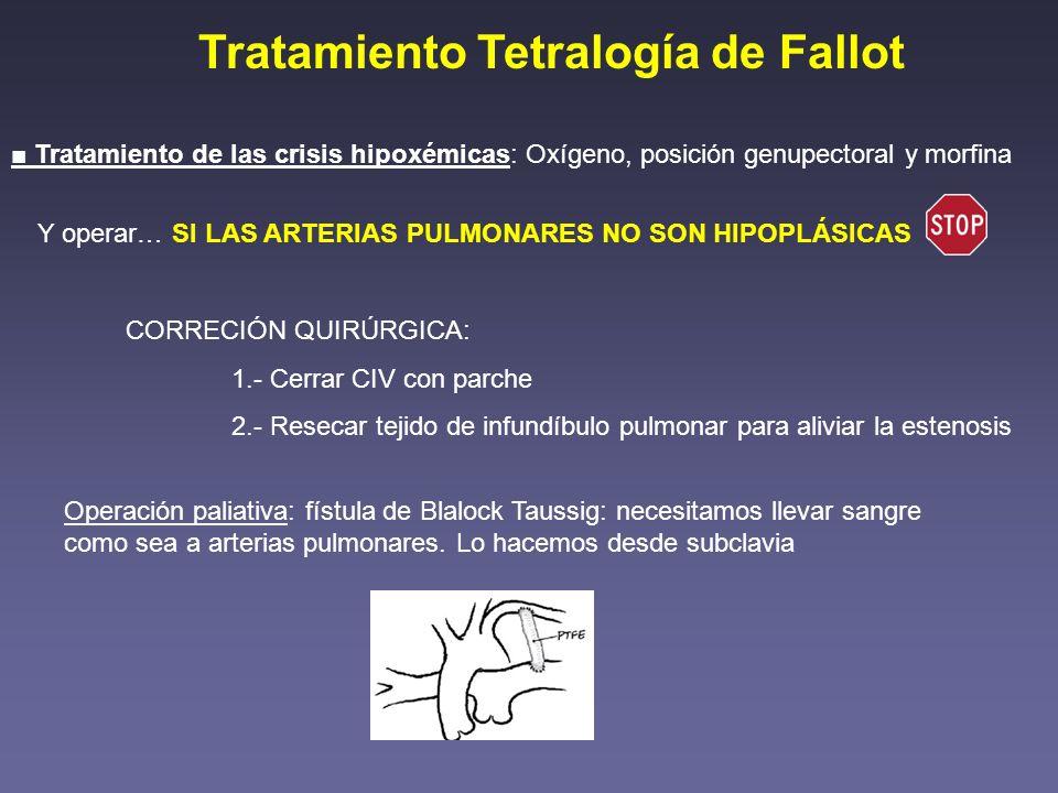 Tratamiento Tetralogía de Fallot Tratamiento de las crisis hipoxémicas: Oxígeno, posición genupectoral y morfina Y operar… SI LAS ARTERIAS PULMONARES