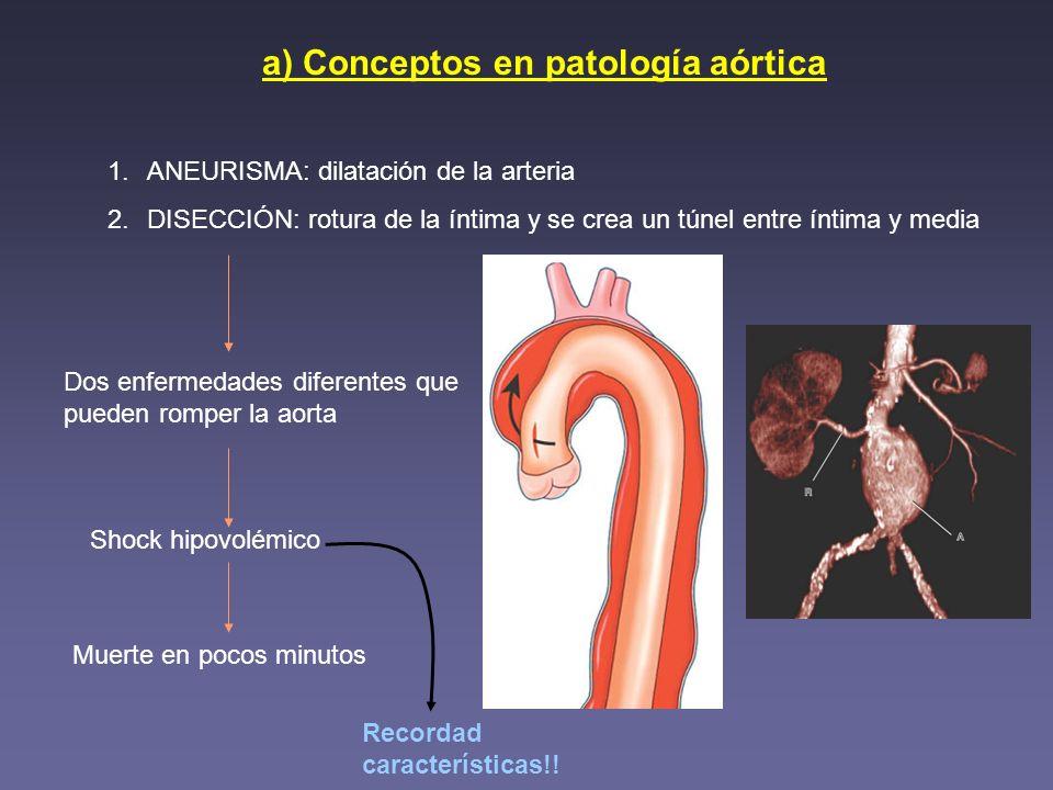 a) Conceptos en patología aórtica 1.ANEURISMA: dilatación de la arteria 2.DISECCIÓN: rotura de la íntima y se crea un túnel entre íntima y media Dos e