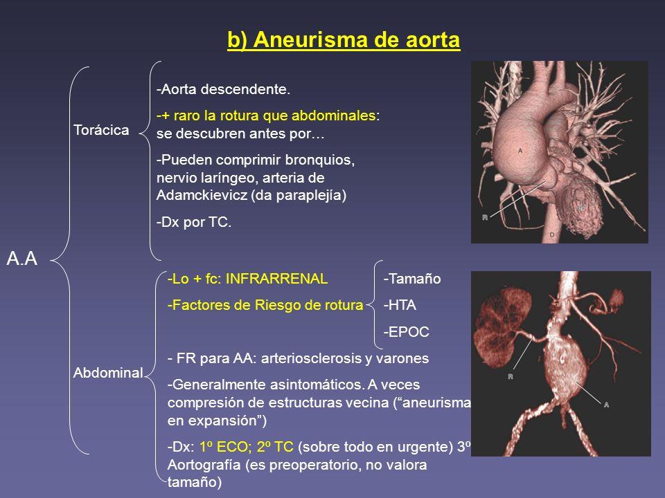 b) Aneurisma de aorta Torácica Abdominal A.A -Lo + fc: INFRARRENAL -Factores de Riesgo de rotura - FR para AA: arteriosclerosis y varones -Generalment