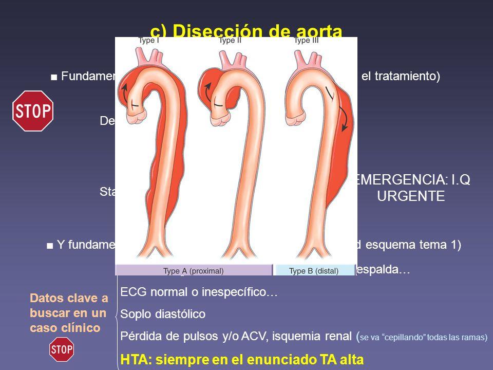 c) Disección de aorta Fundamental conocer la clasificación (de ella depende el tratamiento) De Bakey Tipo I: Ascendente y descendente Tipo II: Ascende