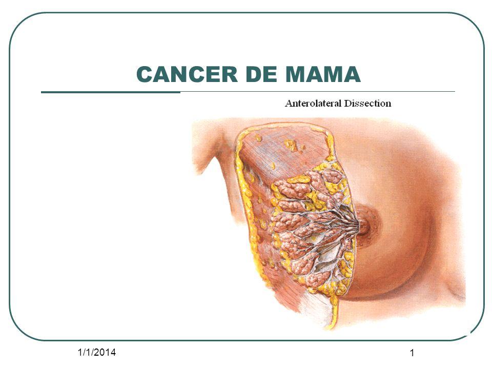 1/1/2014 1 CANCER DE MAMA