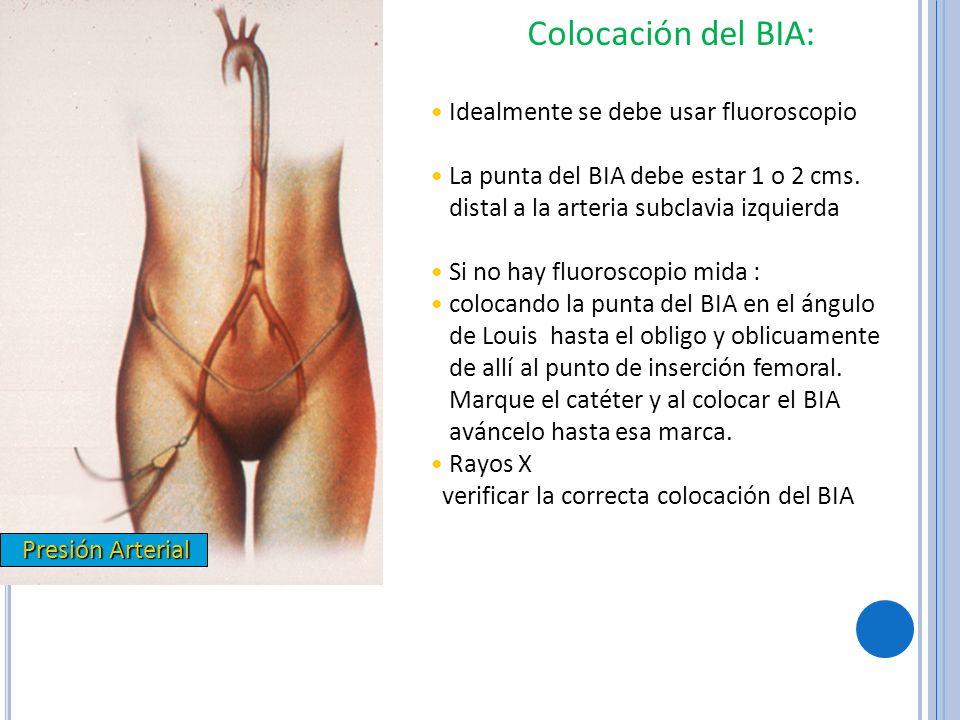 Presión Arterial Presión Arterial Colocación del BIA: Idealmente se debe usar fluoroscopio La punta del BIA debe estar 1 o 2 cms. distal a la arteria