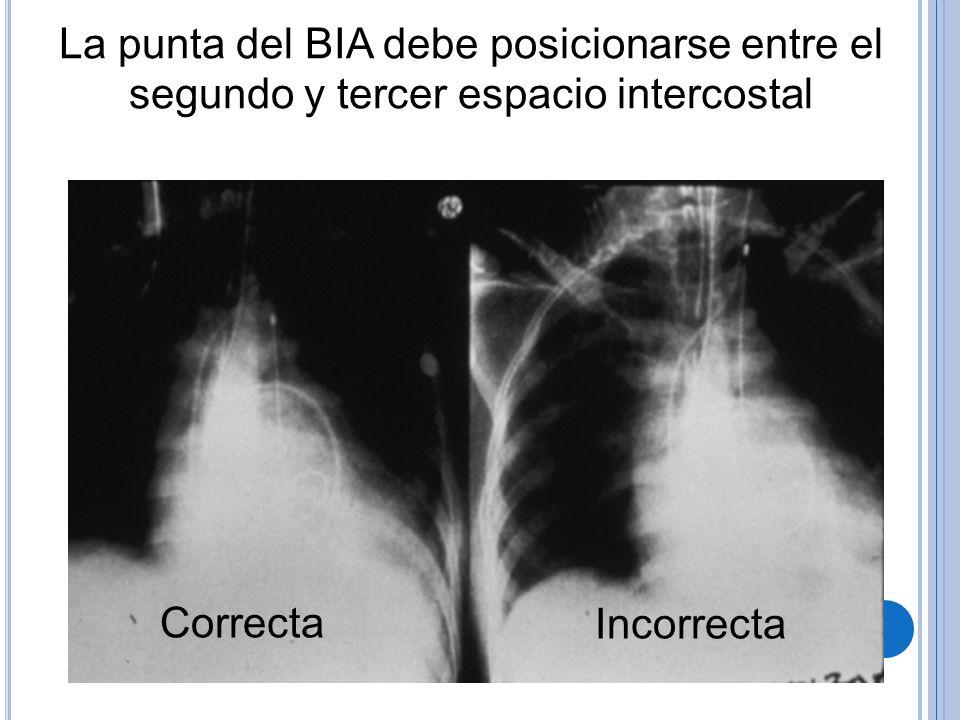 La punta del BIA debe posicionarse entre el segundo y tercer espacio intercostal CorrectaIncorrecta