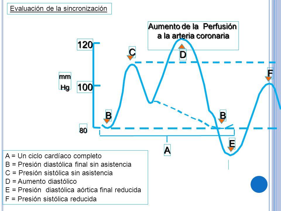 A = Un ciclo cardíaco completo B = Presión diastólica final sin asistencia C = Presión sistólica sin asistencia D = Aumento diastólico E = Presión dia