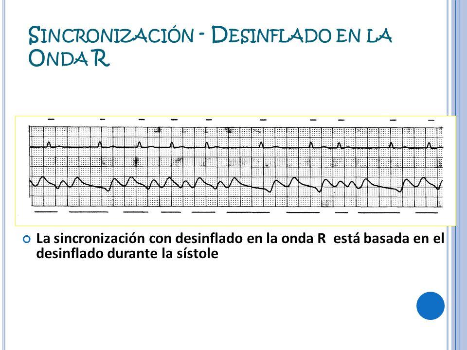 S INCRONIZACIÓN - D ESINFLADO EN LA O NDA R La sincronización con desinflado en la onda R está basada en el desinflado durante la sístole