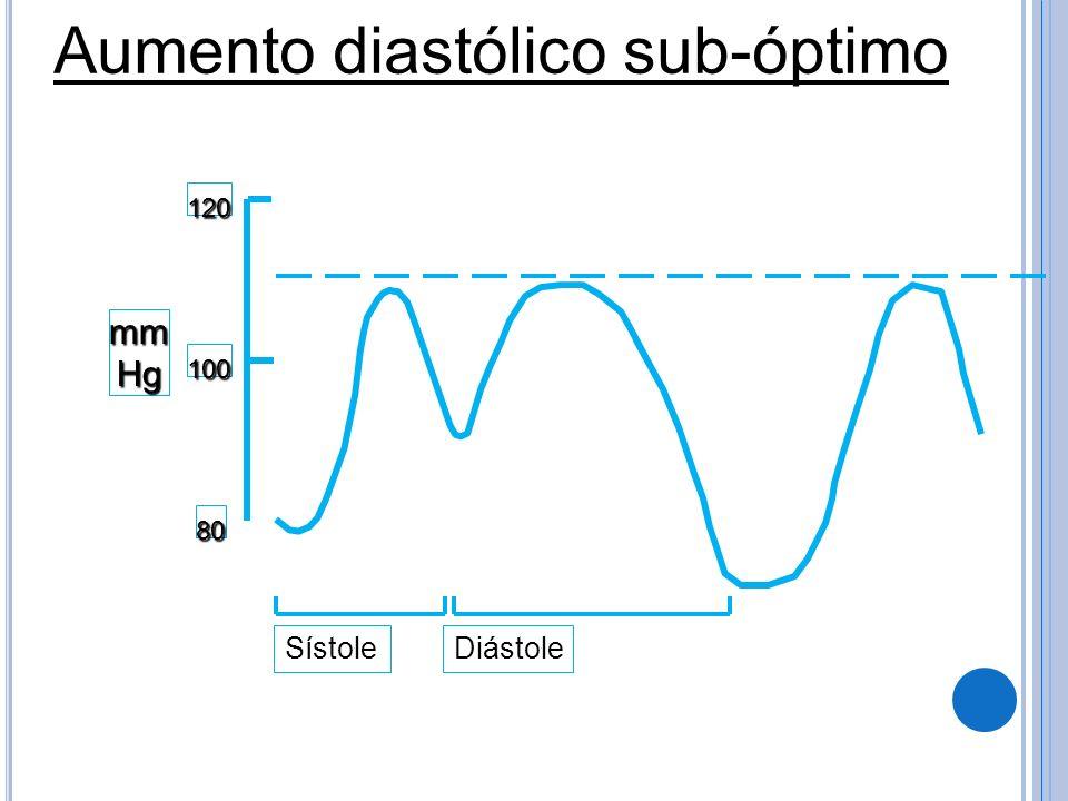 mmHg 120 100 80 Aumento diastólico sub-óptimo SístoleDiástole