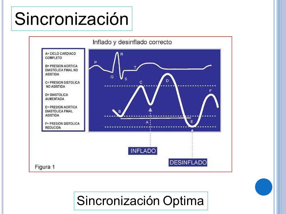 Sincronización Sincronización Optima