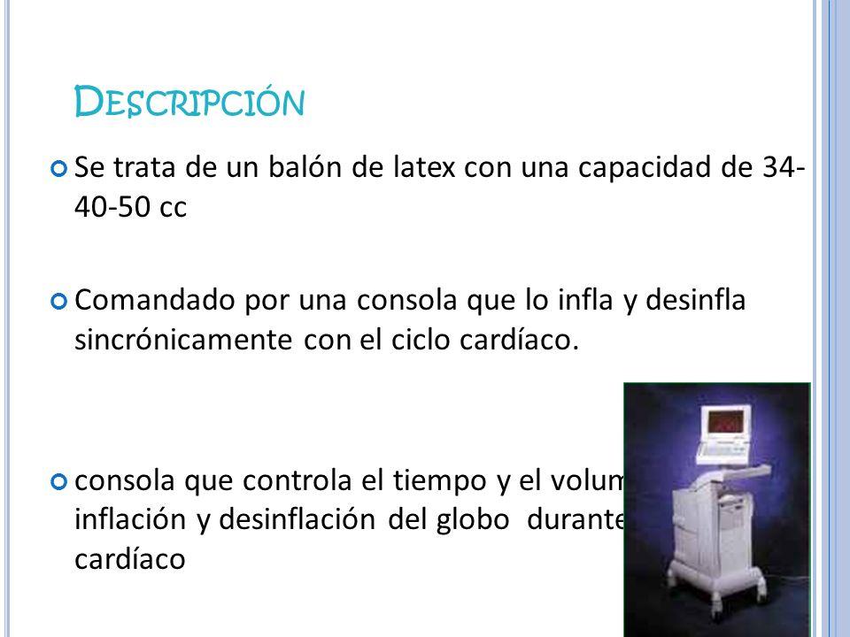 D ESCRIPCIÓN Se trata de un balón de latex con una capacidad de 34- 40-50 cc Comandado por una consola que lo infla y desinfla sincrónicamente con el