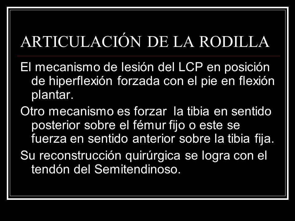 ARTICULACIÓN DE LA RODILLA El mecanismo de lesión del LCP en posición de hiperflexión forzada con el pie en flexión plantar. Otro mecanismo es forzar