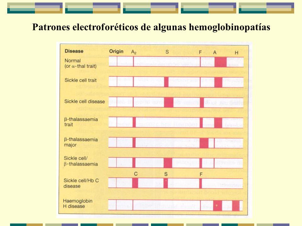 Patrones electroforéticos de algunas hemoglobinopatías