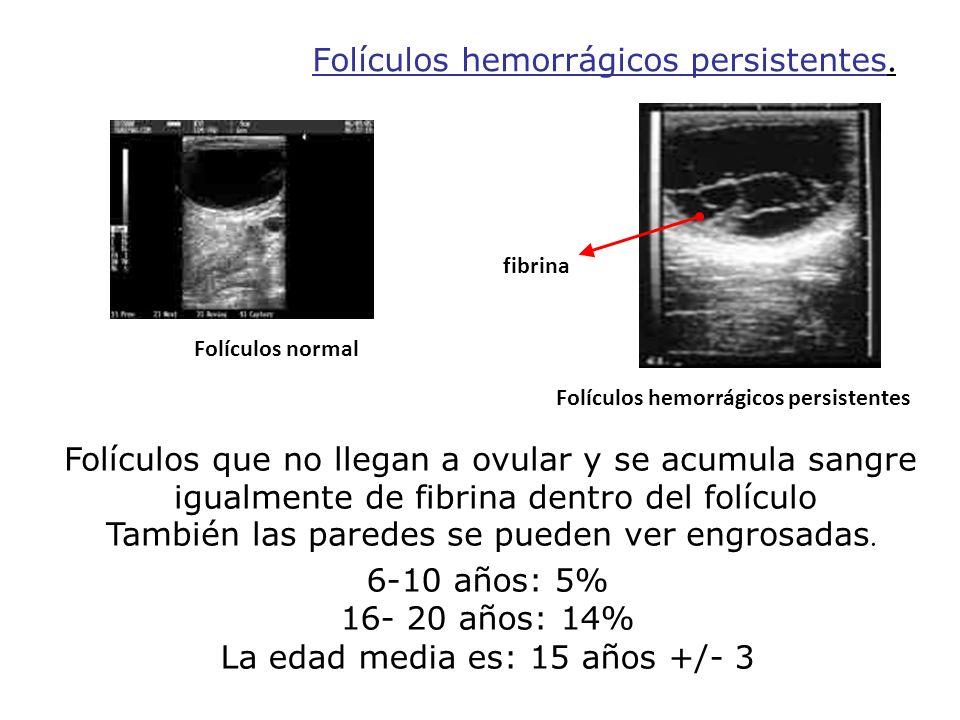 Folículos hemorrágicos persistentes. Folículos normal Folículos hemorrágicos persistentes fibrina Folículos que no llegan a ovular y se acumula sangre